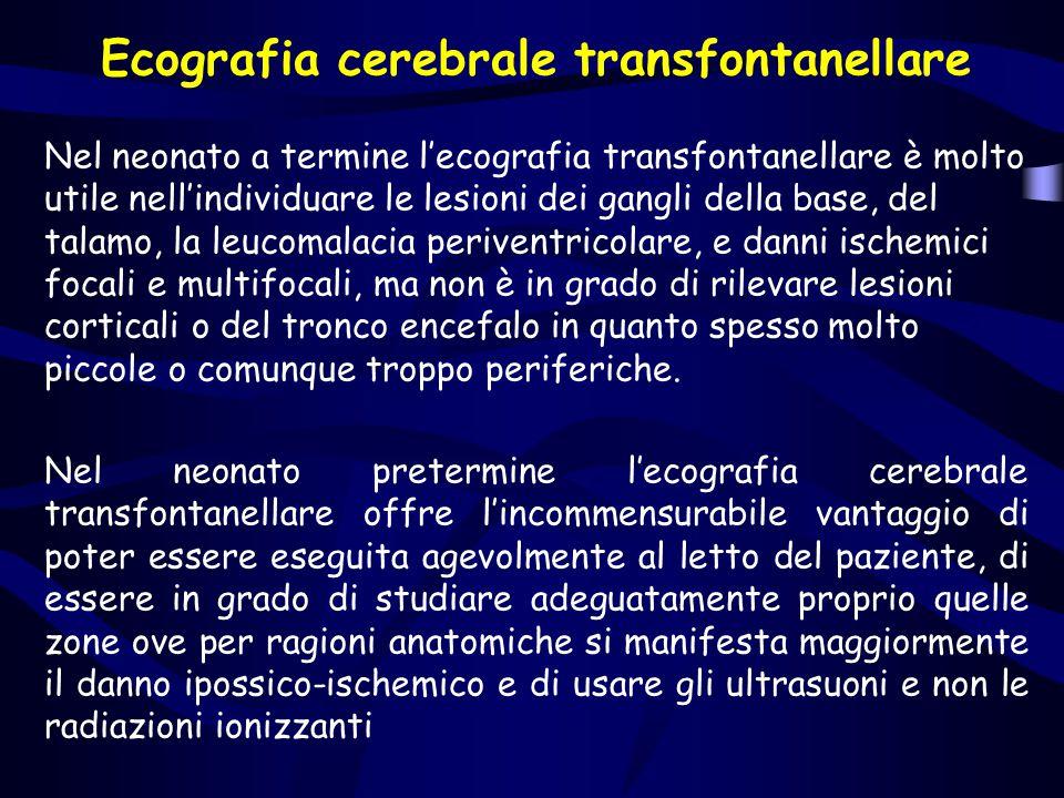 Ecografia cerebrale transfontanellare