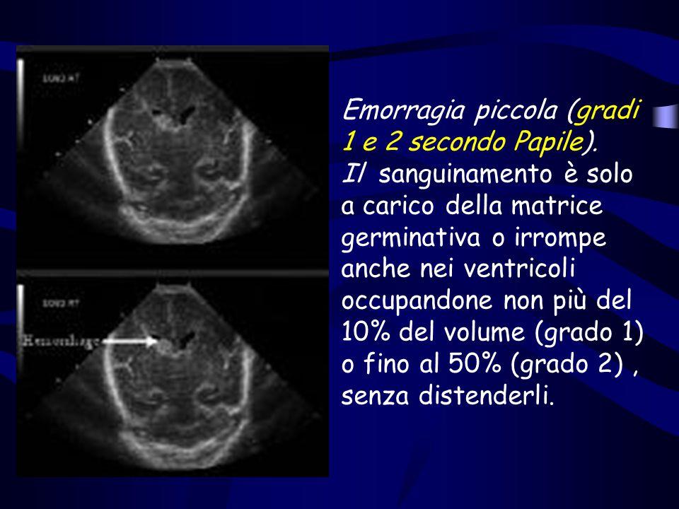 Emorragia piccola (gradi 1 e 2 secondo Papile).