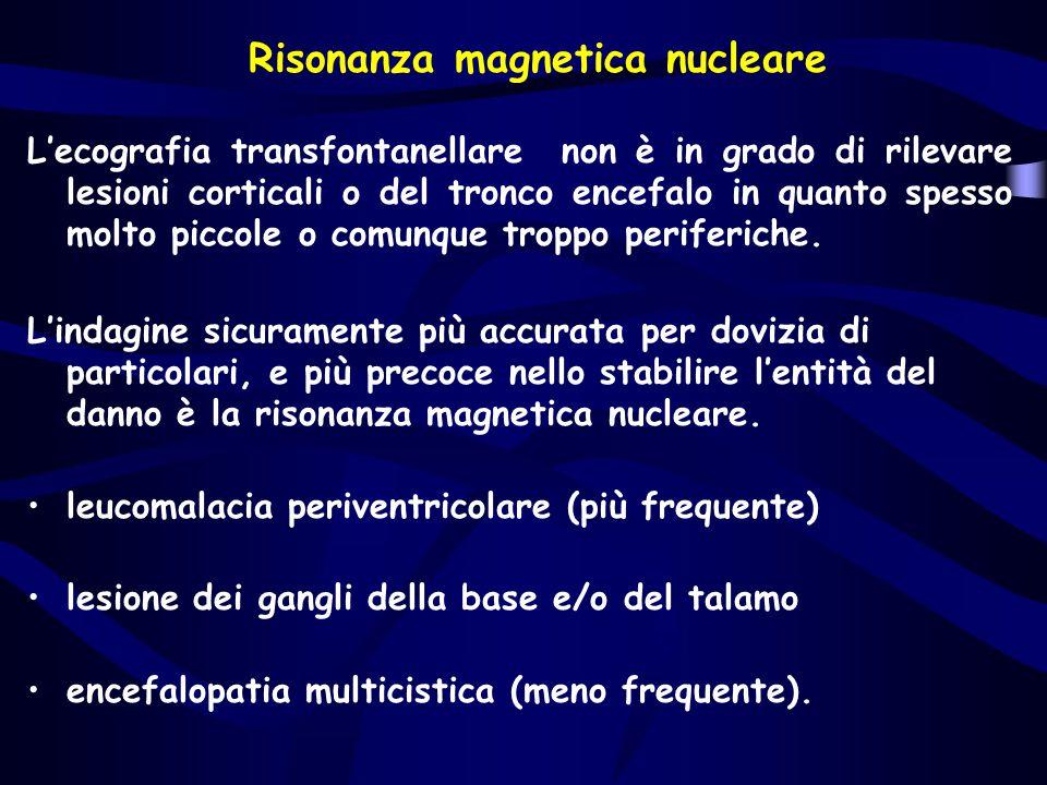 Risonanza magnetica nucleare