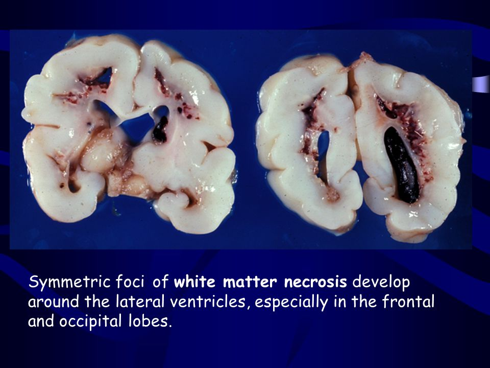 Symmetric foci of white matter necrosis develop around the lateral ventricles, especially in the frontal and occipital lobes.