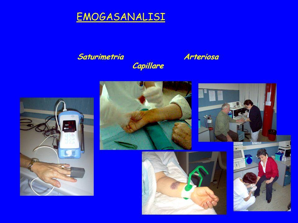 Saturimetria Arteriosa Capillare