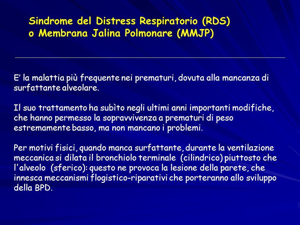 Sindrome del Distress Respiratorio (RDS)