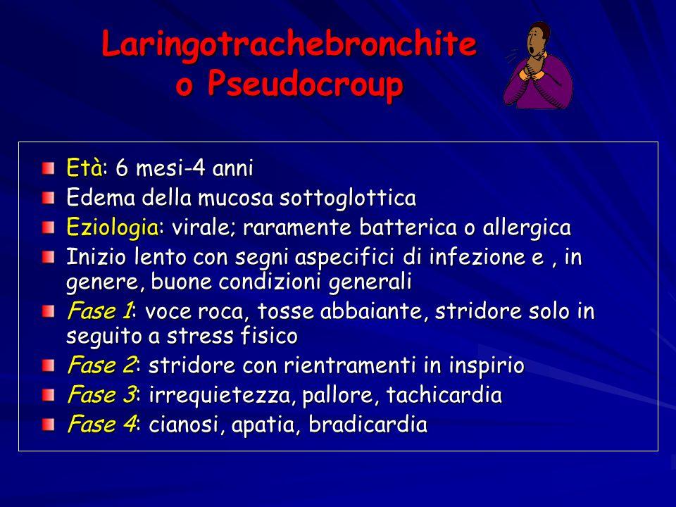 Laringotrachebronchite o Pseudocroup