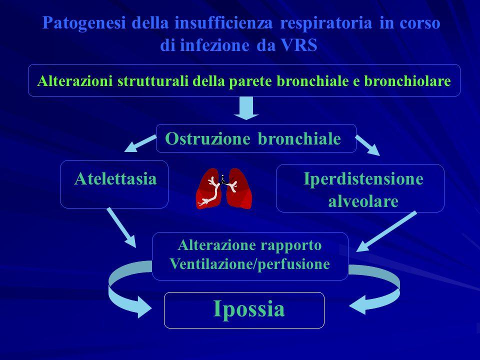 Ipossia Patogenesi della insufficienza respiratoria in corso