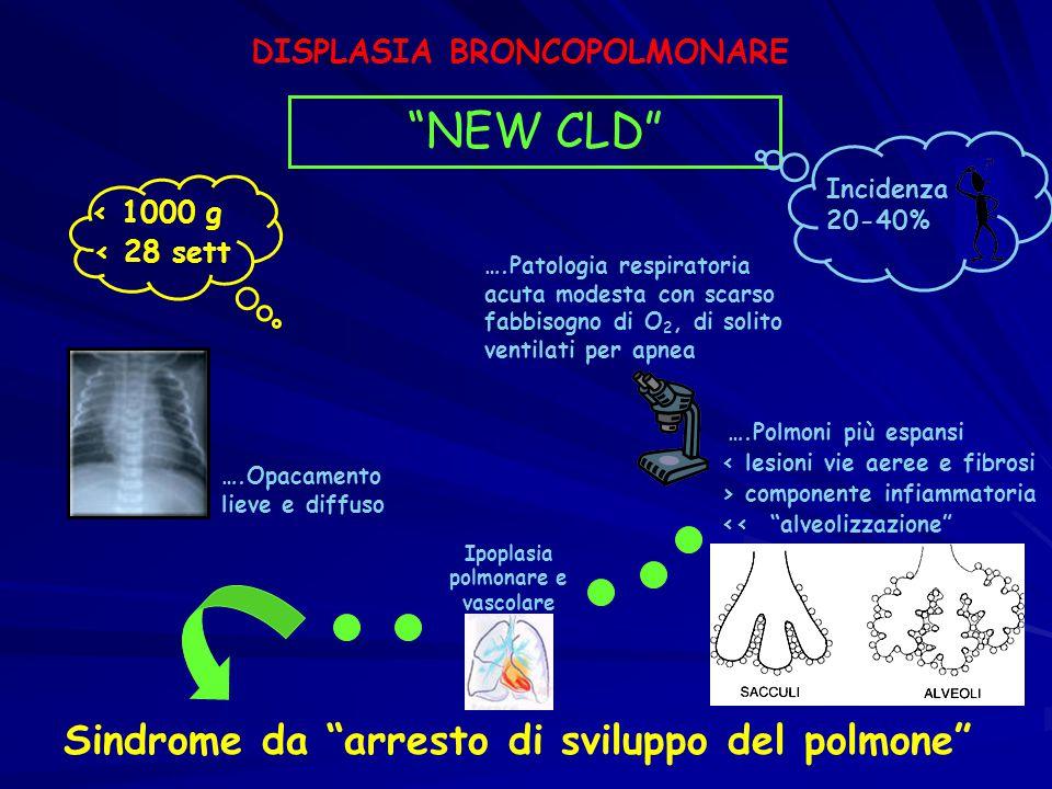DISPLASIA BRONCOPOLMONARE Ipoplasia polmonare e vascolare