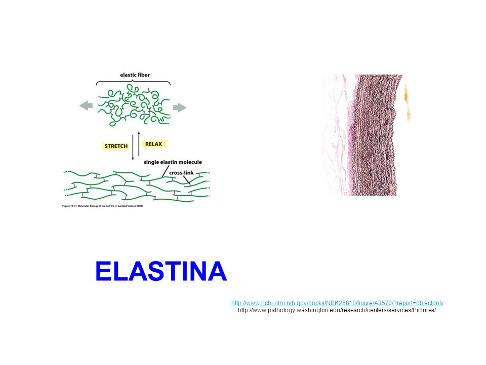 Elastina http://www.ncbi.nlm.nih.gov/books/NBK26810/figure/A3570/ report=objectonly.