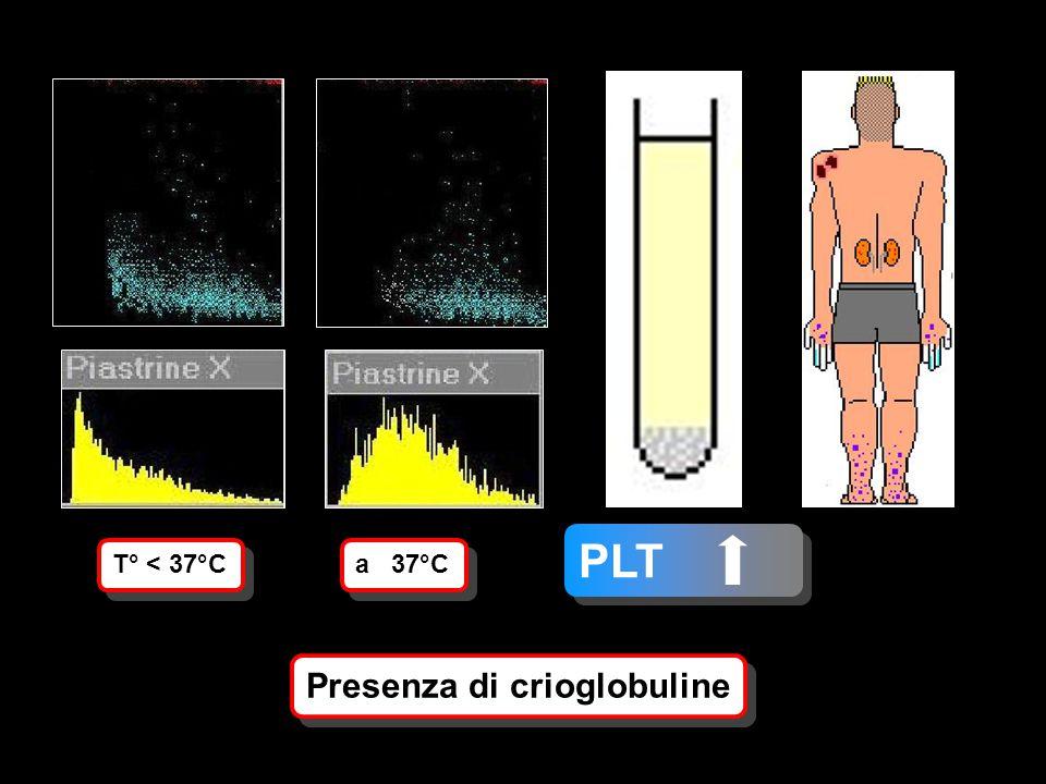 PLT Presenza di crioglobuline T° < 37°C a 37°C