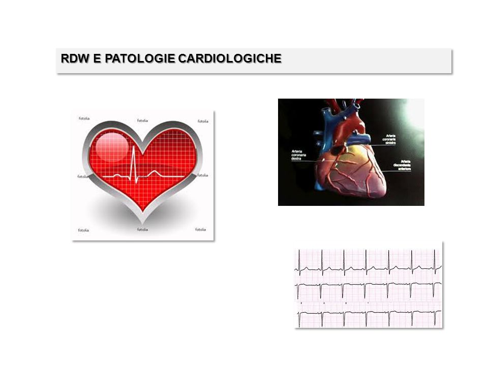 RDW E PATOLOGIE CARDIOLOGICHE