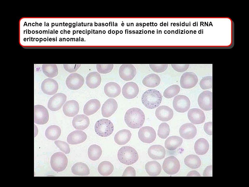 Anche la punteggiatura basofila è un aspetto dei residui di RNA ribosomiale che precipitano dopo fissazione in condizione di eritropoiesi anomala.