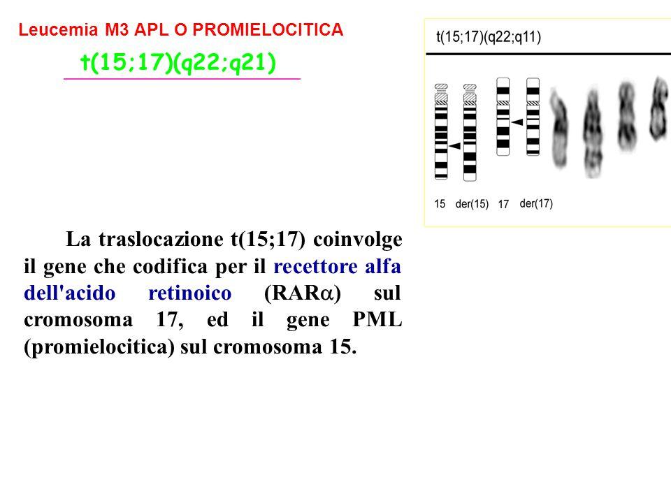t(15;17)(q22;q21) Leucemia M3 APL O PROMIELOCITICA.