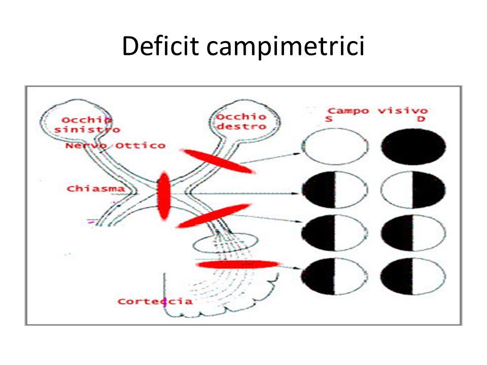 Deficit campimetrici