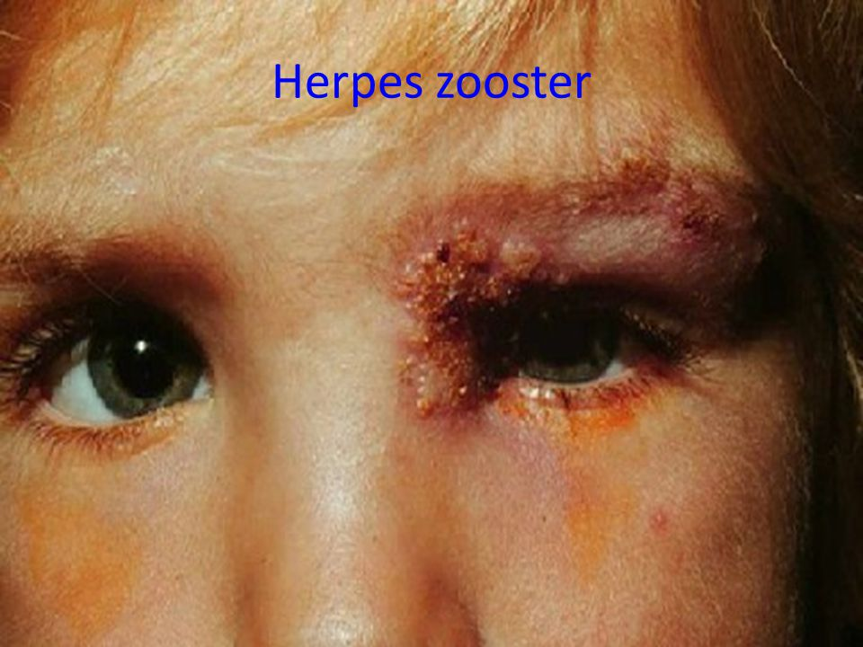 Herpes zooster