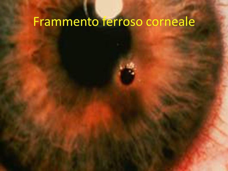 Frammento ferroso corneale