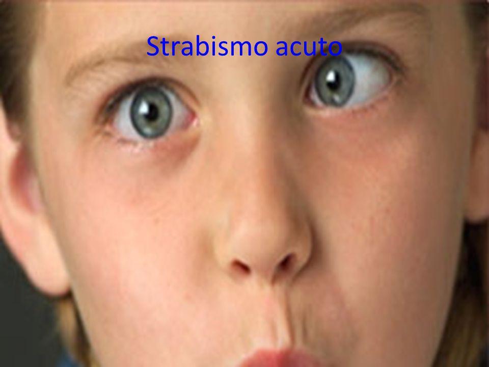 Strabismo acuto