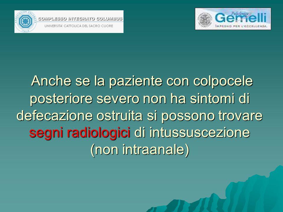 Anche se la paziente con colpocele posteriore severo non ha sintomi di defecazione ostruita si possono trovare segni radiologici di intussuscezione (non intraanale)