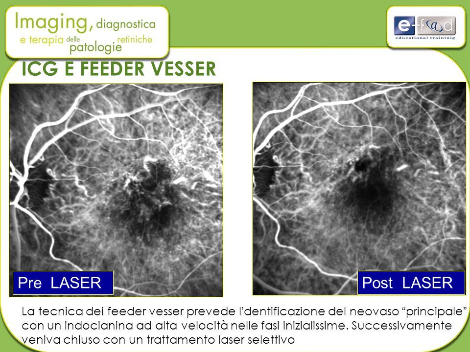 ICG E FEEDER VESSER Pre LASER Post LASER