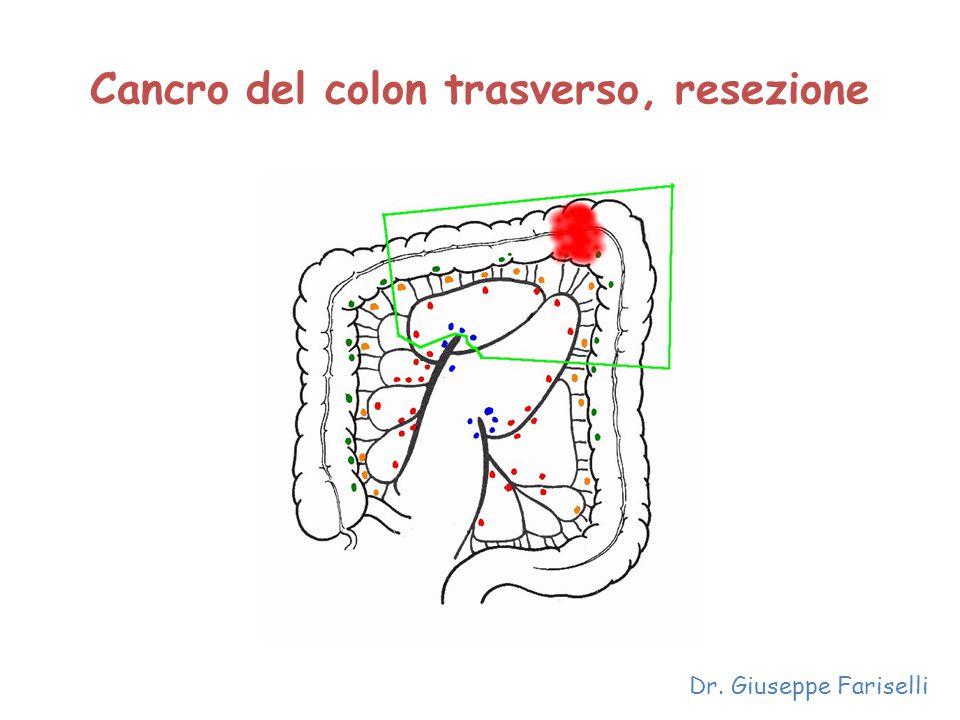 Cancro del colon trasverso, resezione