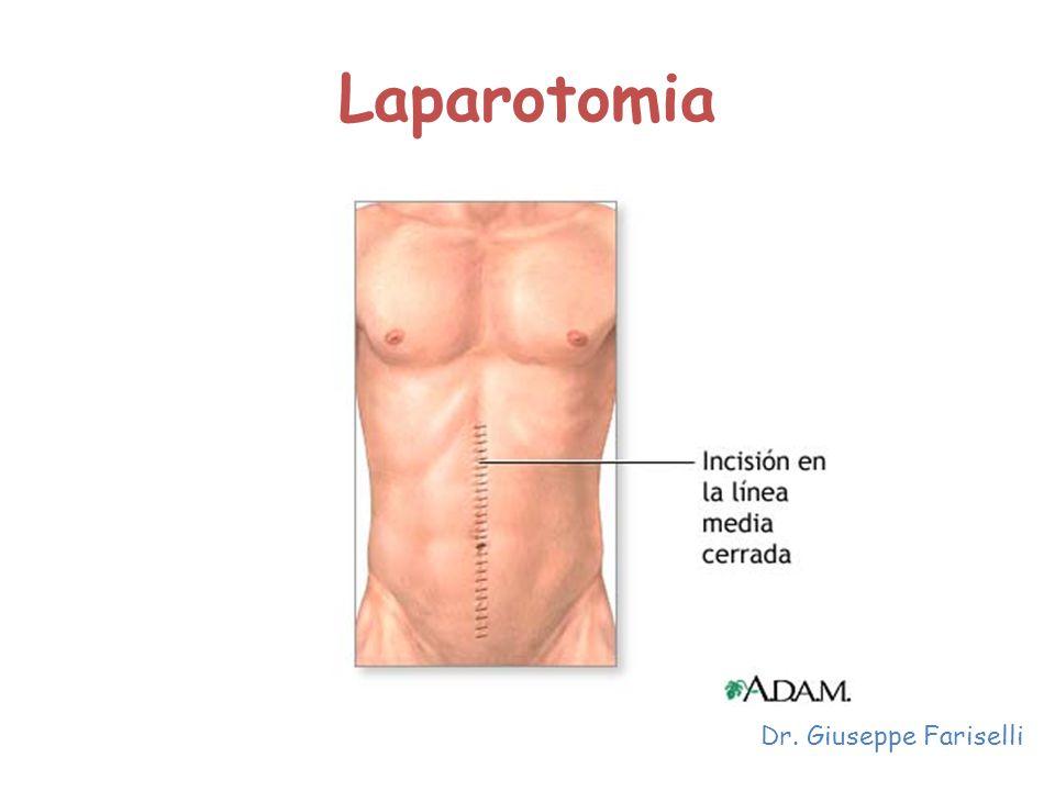 Laparotomia Dr. Giuseppe Fariselli