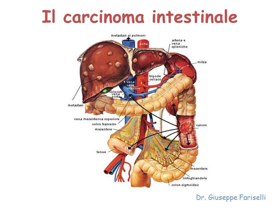 Il carcinoma intestinale