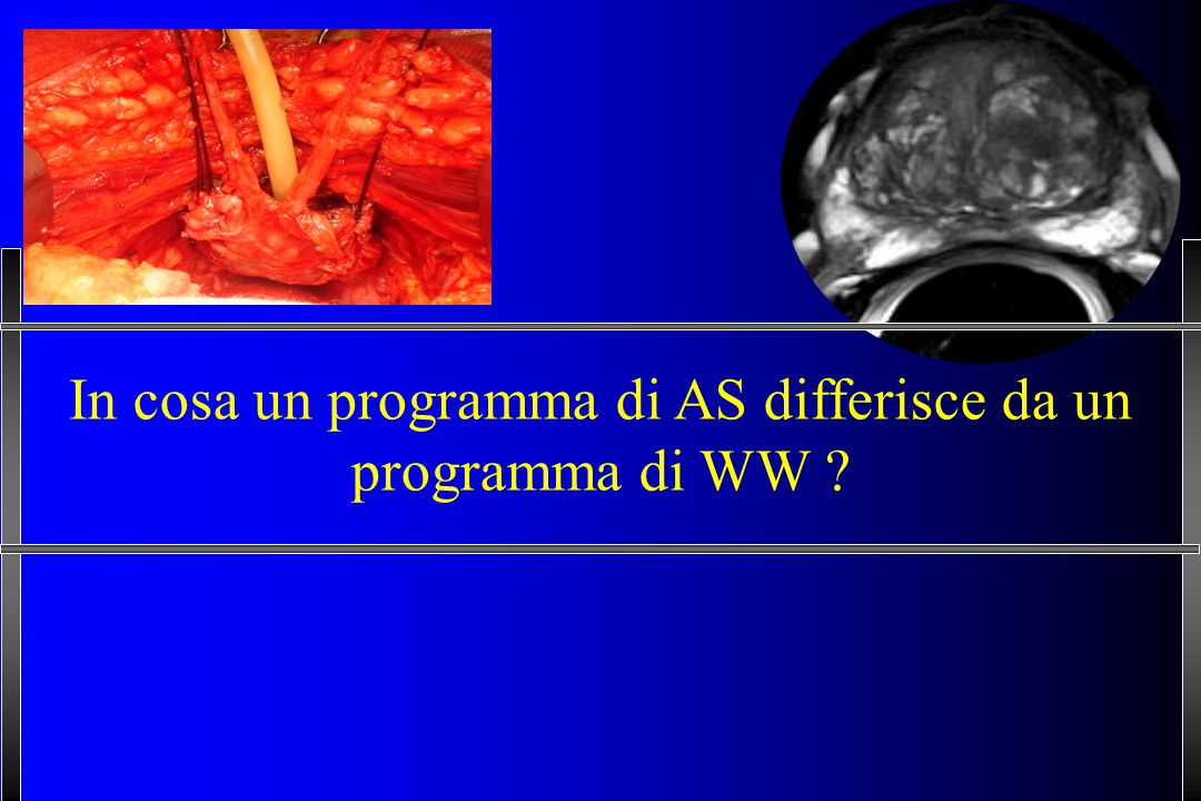 In cosa un programma di AS differisce da un programma di WW