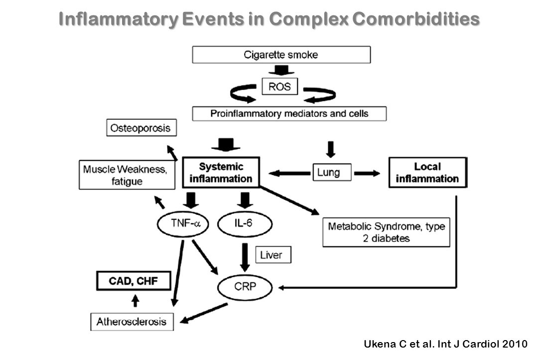 Inflammatory Events in Complex Comorbidities