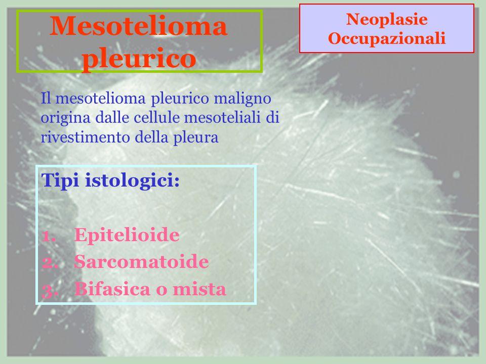 Tipi istologici: Epitelioide Sarcomatoide Bifasica o mista