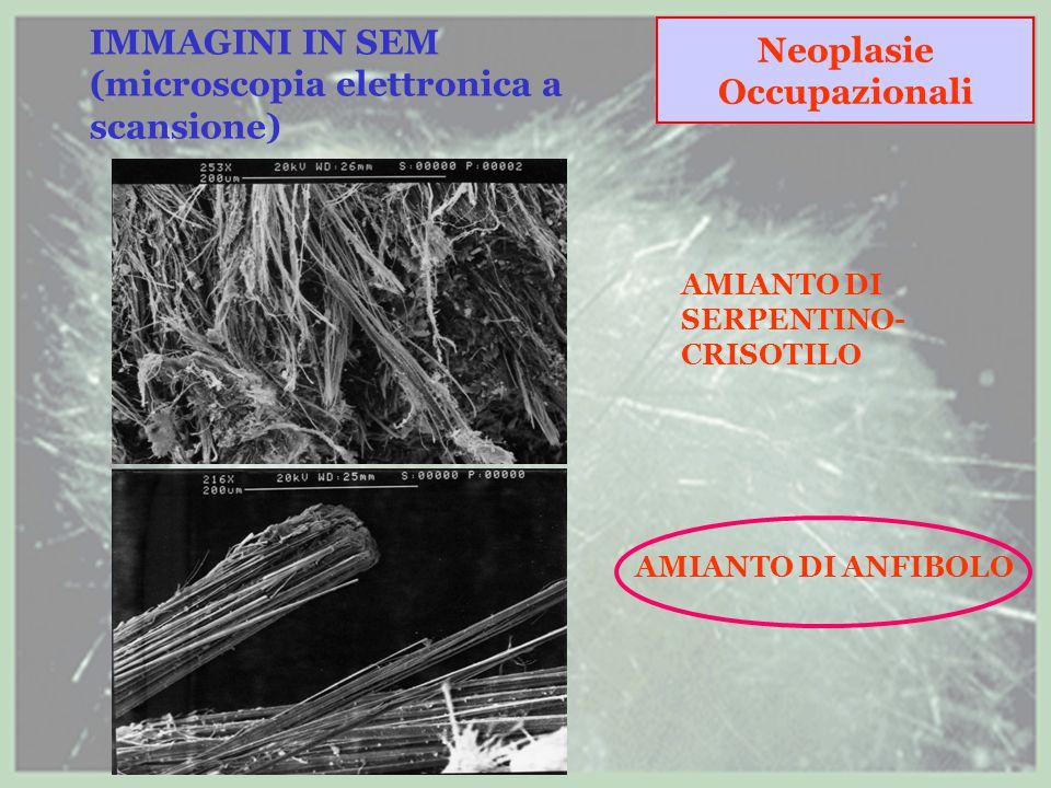 IMMAGINI IN SEM (microscopia elettronica a scansione)