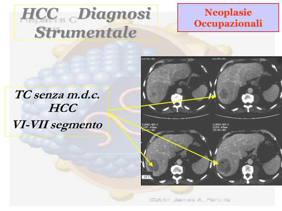 HCC Diagnosi Strumentale Neoplasie Occupazionali