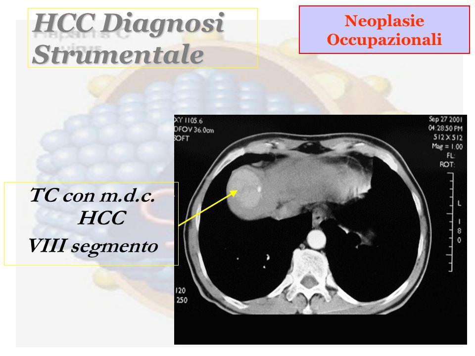 HCC Diagnosi Strumentale