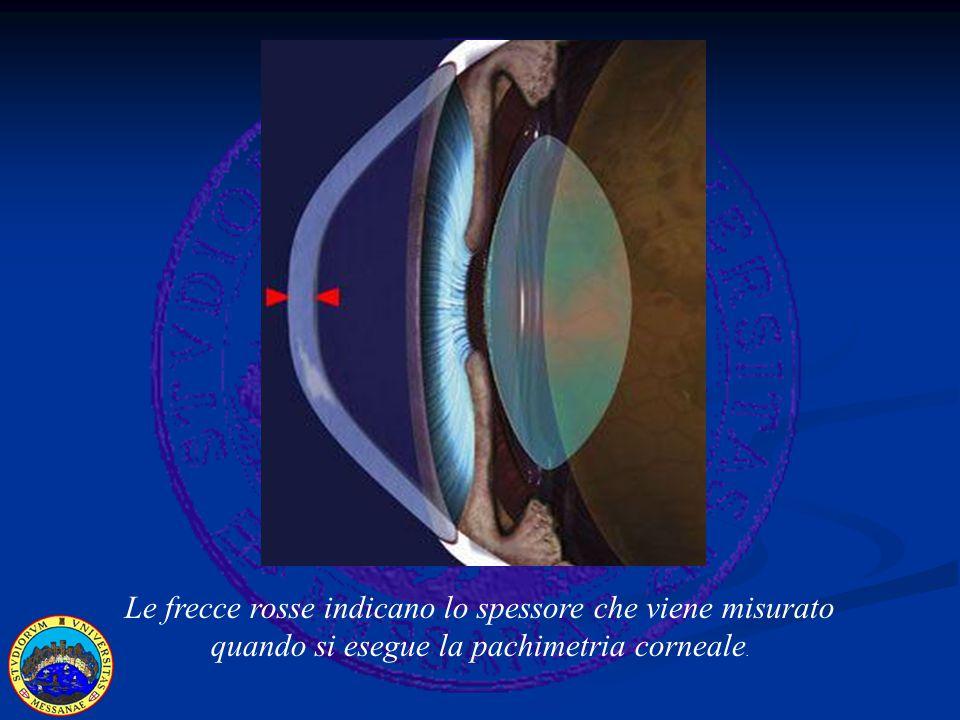 Pachimetria e Glaucoma