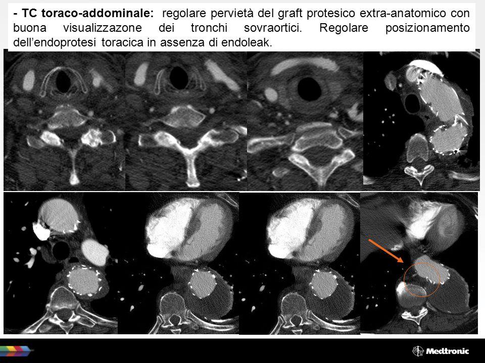 - TC toraco-addominale: regolare pervietà del graft protesico extra-anatomico con buona visualizzazone dei tronchi sovraortici.