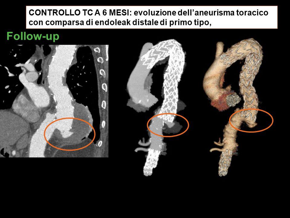 CONTROLLO TC A 6 MESI: evoluzione dell'aneurisma toracico con comparsa di endoleak distale di primo tipo,
