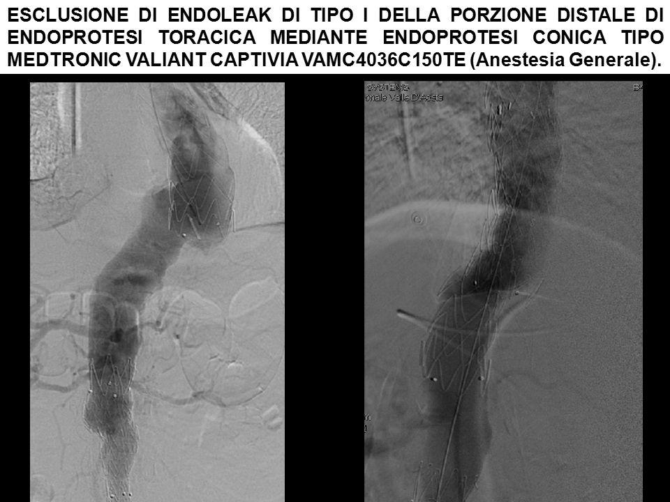 ESCLUSIONE DI ENDOLEAK DI TIPO I DELLA PORZIONE DISTALE DI ENDOPROTESI TORACICA MEDIANTE ENDOPROTESI CONICA TIPO MEDTRONIC VALIANT CAPTIVIA VAMC4036C150TE (Anestesia Generale).