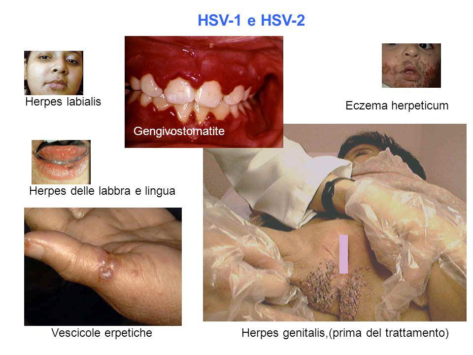HSV-1 e HSV-2 Herpes labialis Eczema herpeticum Gengivostomatite