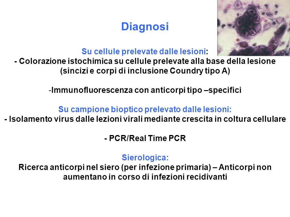 Diagnosi Su cellule prelevate dalle lesioni: