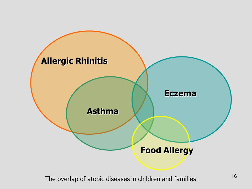 Allergic Rhinitis Eczema Asthma Food Allergy