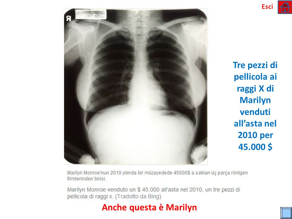 Esci Tre pezzi di pellicola ai raggi X di Marilyn venduti all'asta nel 2010 per 45.000 $ Anche questa è Marilyn.