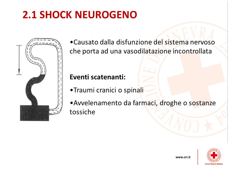 2.1 SHOCK NEUROGENO Causato dalla disfunzione del sistema nervoso che porta ad una vasodilatazione incontrollata.