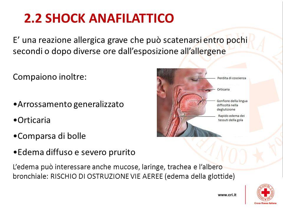 2.2 SHOCK ANAFILATTICO E' una reazione allergica grave che può scatenarsi entro pochi secondi o dopo diverse ore dall'esposizione all'allergene.