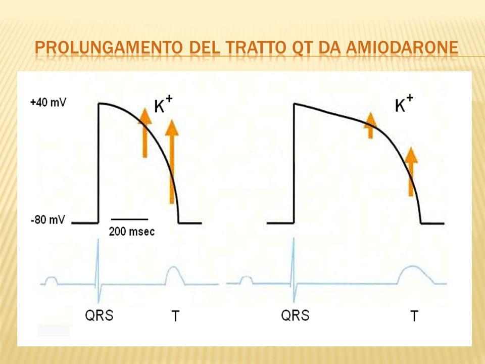 Prolungamento del tratto qt da amiodarone