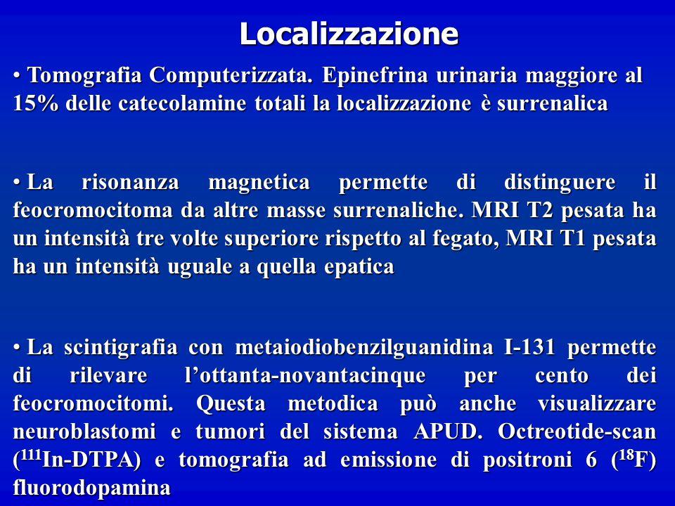Localizzazione Tomografia Computerizzata. Epinefrina urinaria maggiore al 15% delle catecolamine totali la localizzazione è surrenalica.