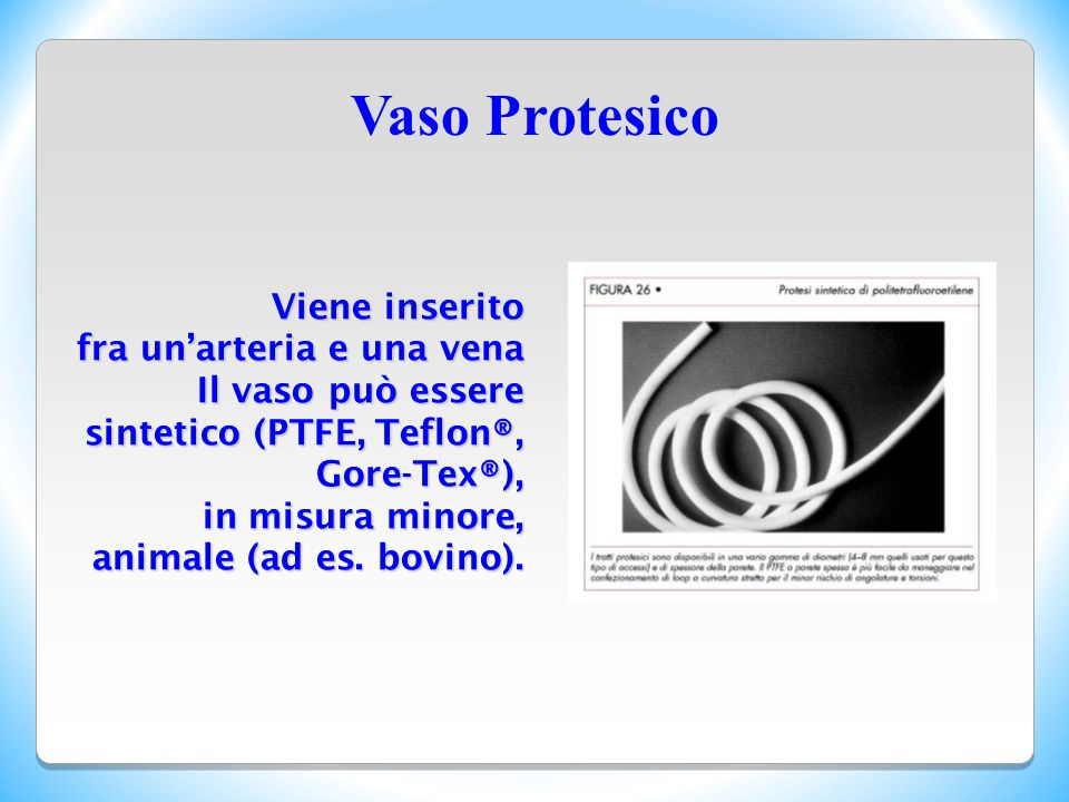 Vaso Protesico Viene inserito fra un'arteria e una vena