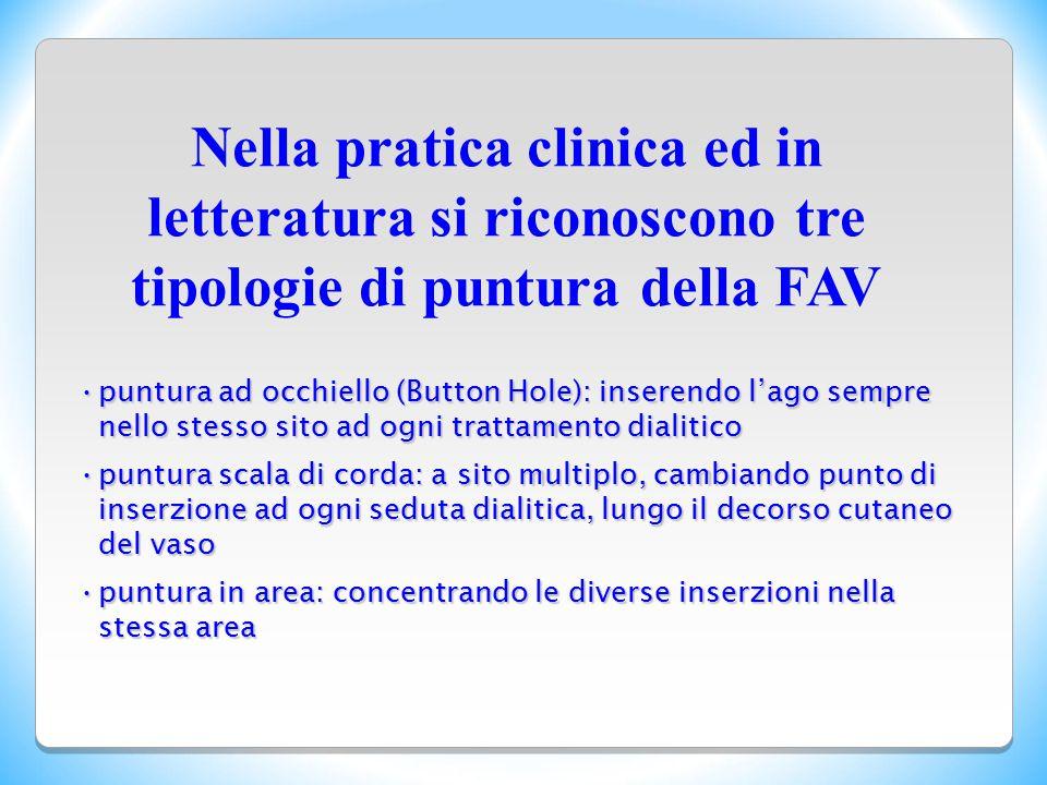 Nella pratica clinica ed in letteratura si riconoscono tre tipologie di puntura della FAV