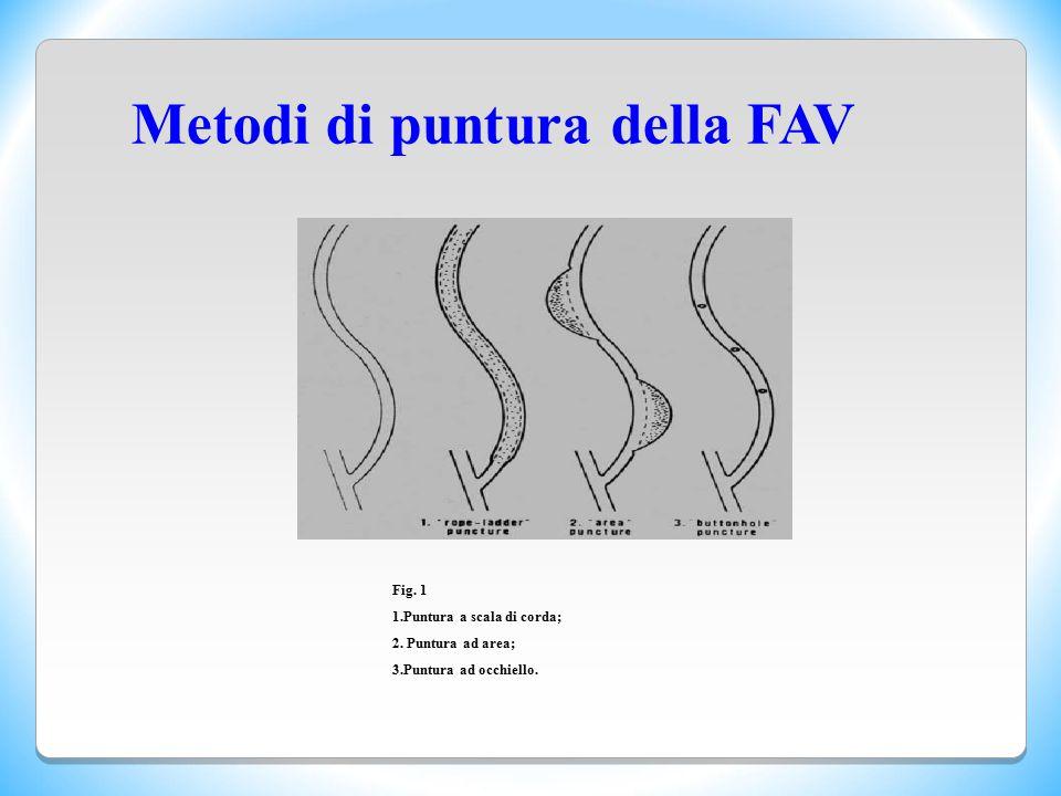 Metodi di puntura della FAV