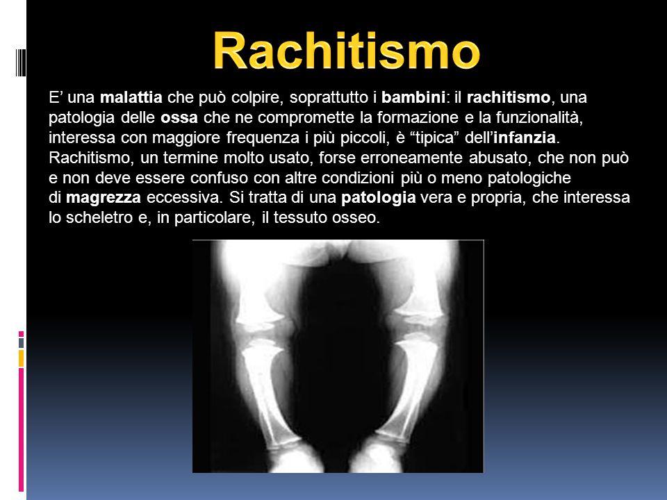 Rachitismo
