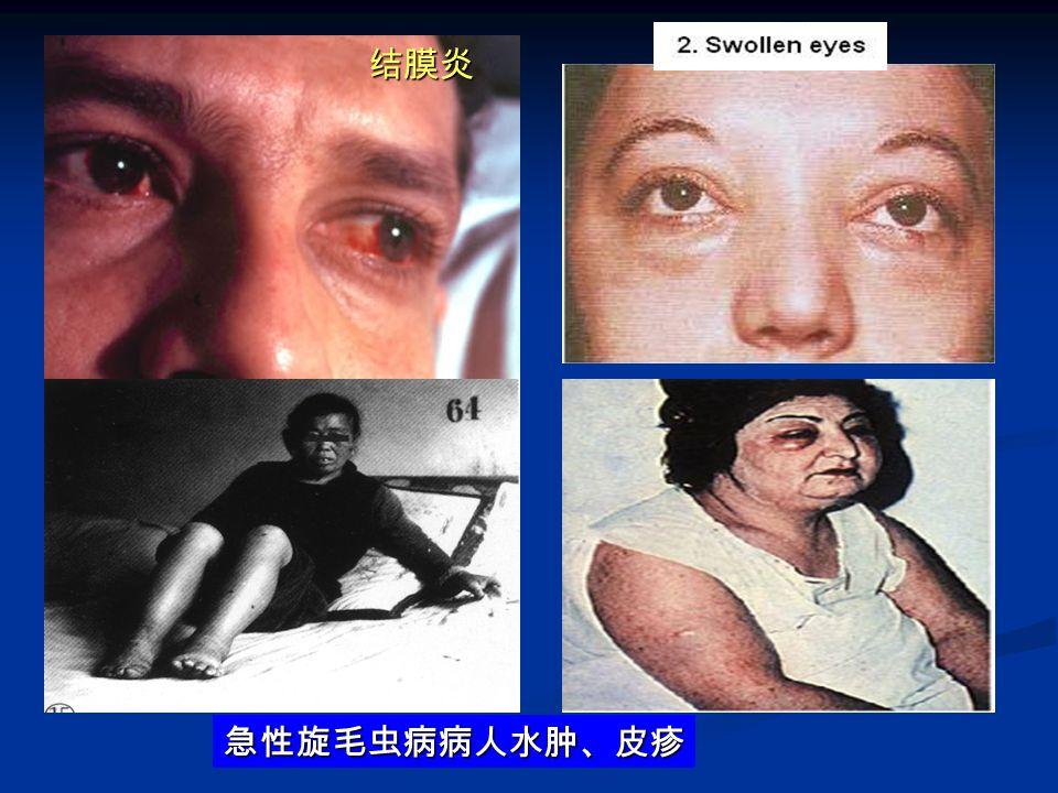 结膜炎 急性旋毛虫病病人水肿、皮疹