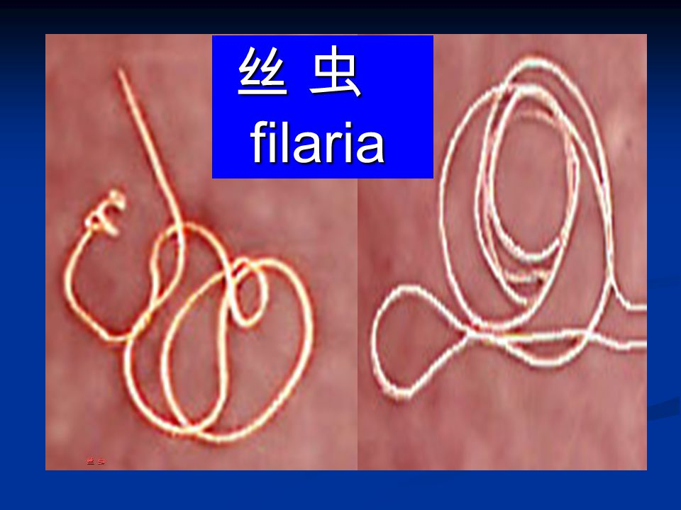 丝 虫 filaria 丝 虫