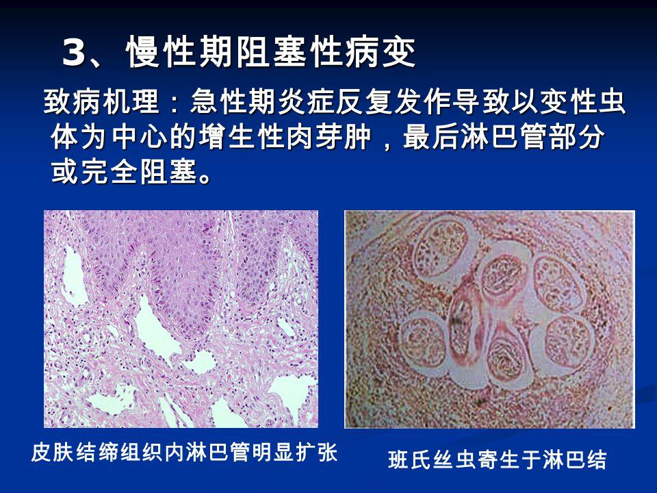3、慢性期阻塞性病变 致病机理:急性期炎症反复发作导致以变性虫体为中心的增生性肉芽肿,最后淋巴管部分或完全阻塞。