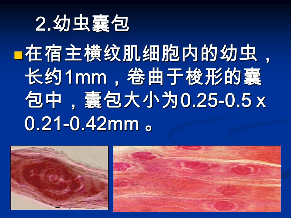 2.幼虫囊包 在宿主横纹肌细胞内的幼虫,长约1mm,卷曲于梭形的囊包中,囊包大小为0.25-0.5 x 0.21-0.42mm 。