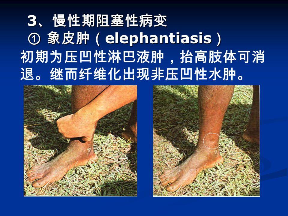 3、慢性期阻塞性病变 ① 象皮肿(elephantiasis)